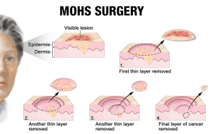 West-Valley-Dermatology-Mohs-Surgery