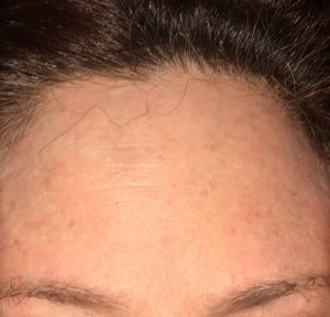 My intact forehead before surgery.  That minuscule dot in the bottom middle is where the offending cancer was. Photo by Mr. X.