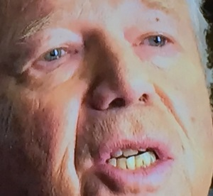 Robert Kraft's teeth and nose hair, neither of which he knows to fix!  I hope you weren't eating when you saw this! Photo by Karen Salkin.
