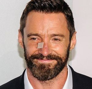 Hugh Jackman, always willing to share his skin cancer woes, to help others.