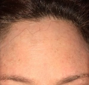 What my forehead looked like before the surgery.  That tiny red spot in the lower middle was the cancer!  Wow.  Photo by Mr. X.