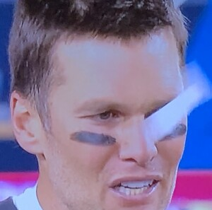 Look at Tom Brady's yellow bottom teeth! Photo by Karen Salkin.